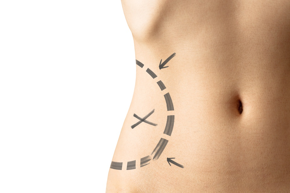 Langsing Cepat Tanpa Liposuction